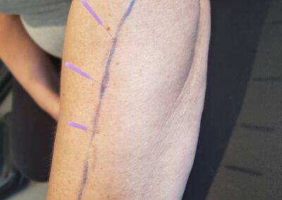Dry Needling: An Answer for Chronic Pain